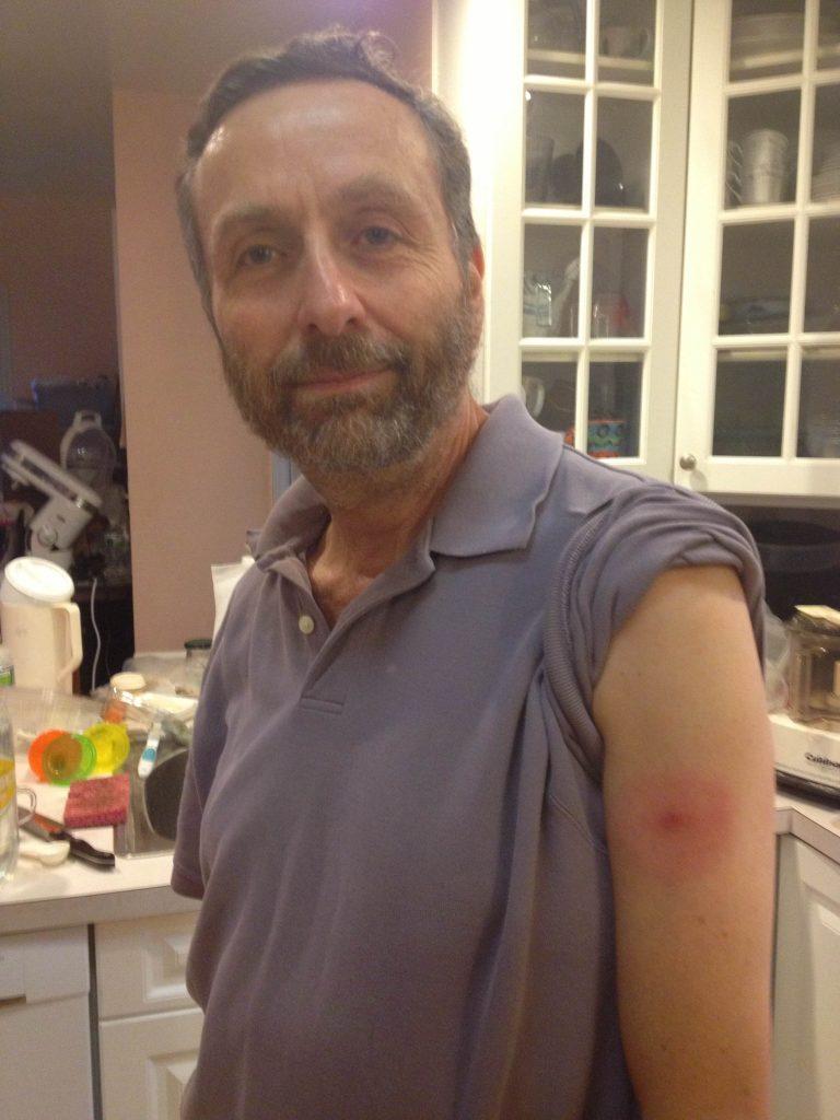 author in 2013 showing Lyme Disease bullseye rash on arm